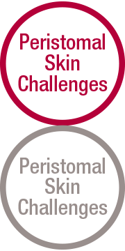 Peristomal Skin Challenges
